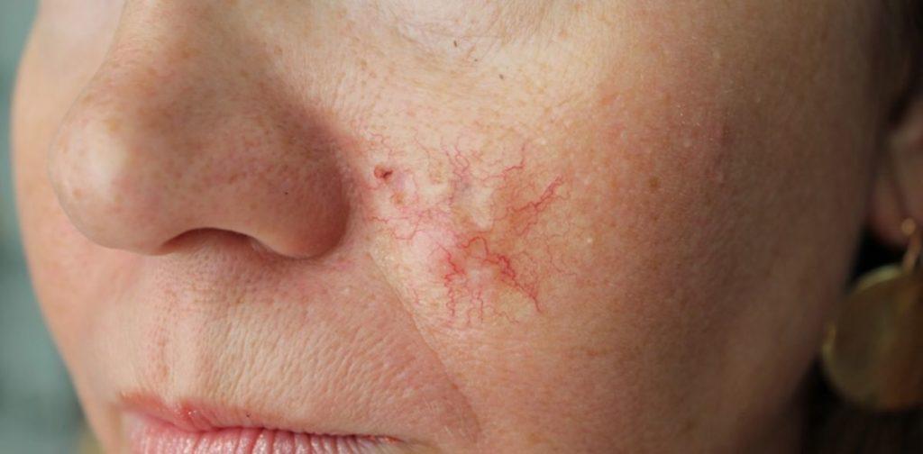 Базалиома на носу: признаки, лечение, облучение и фото