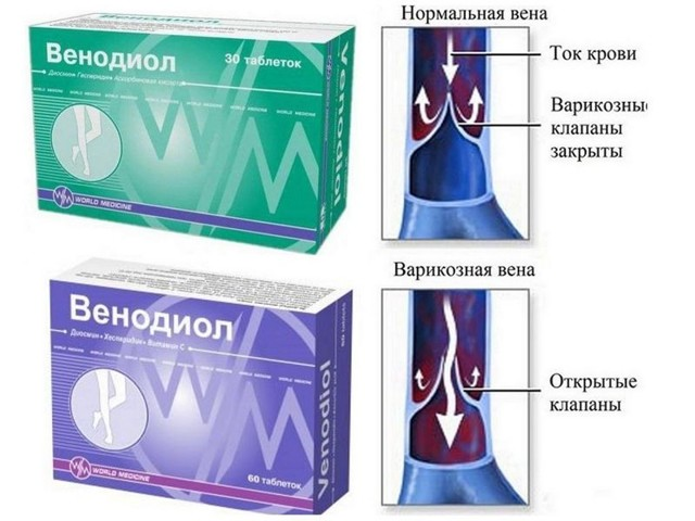 Венодиол: таблетки для лечения и профилактики варикоза