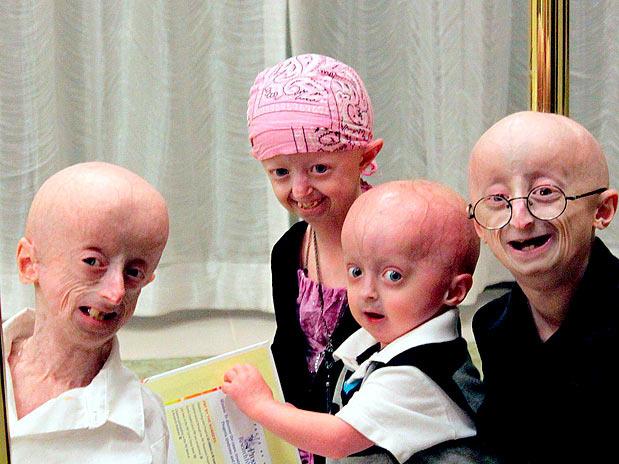 Прогерия (синдром преждевременного старения): виды, развитие, лечение
