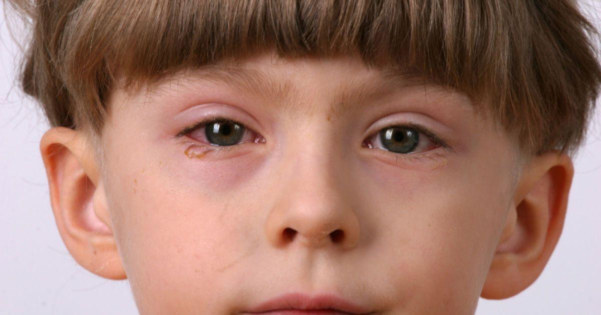 Нет слезам: как избавиться от аллергического конъюнктивита?