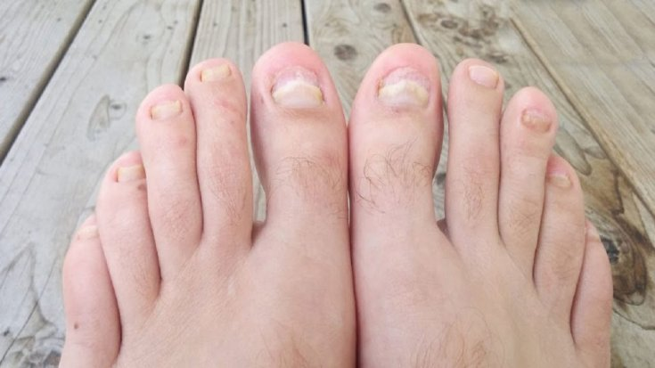 грибок ногтей на ногах — лечение, лекарства, профилактика