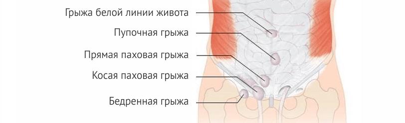Чем опасна пупочная грыжа, и как ее лечить
