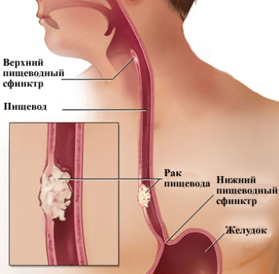 Болезни пищевода: признаки, симптомы и лечение