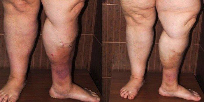 Флебит | симптомы | диагностика | лечение - docdoc.ru