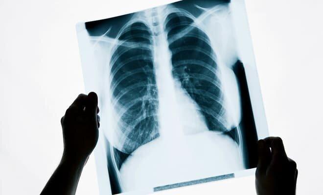 Что такое посттуберкулезные изменения легких?