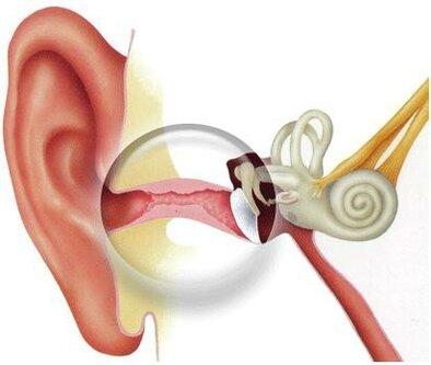 Отит среднего уха — симптомы и лечение
