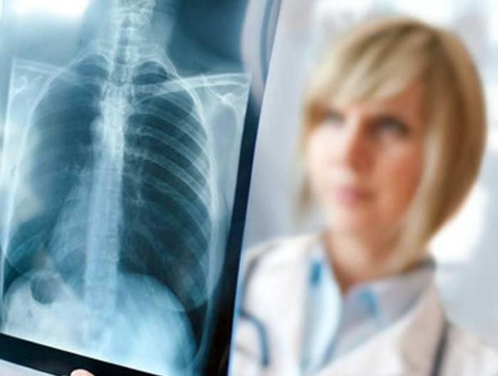 Открытый туберкулез легких: как передается, симптомы, стадии и лечение
