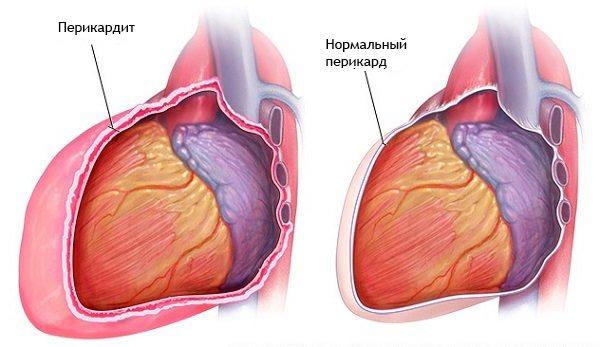 Когда сердце утопает: что такое экссудативный перикардит и чем опасен выпот в полости перикарда?