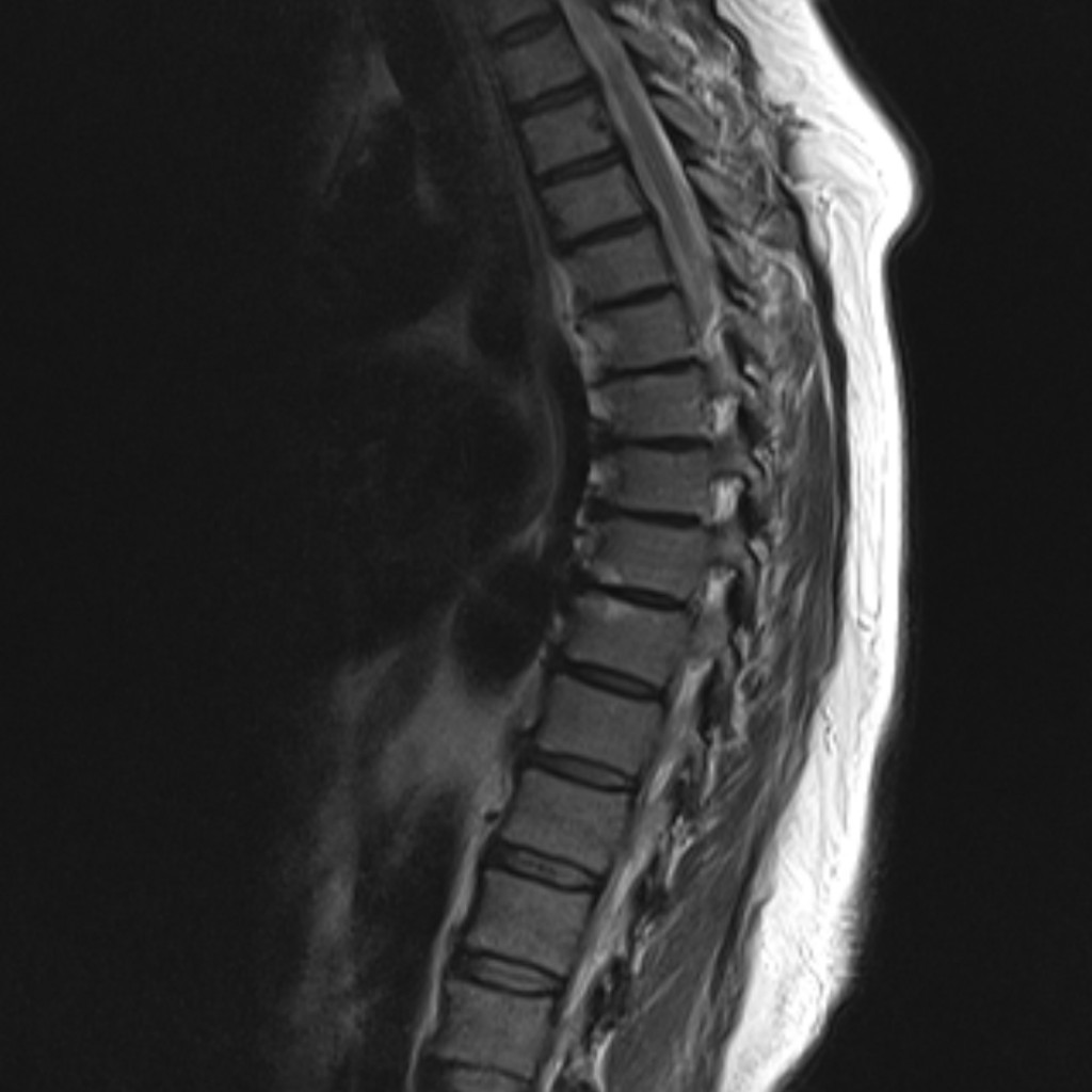 Артериовенозная фистула - dural arteriovenous fistula - qwe.wiki