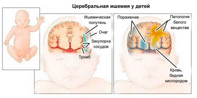 Церебральная ишемия у новорожденных: симптомы, степени, лечение, последствия