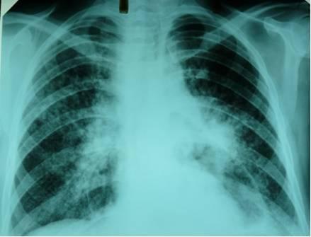 Диагностика туберкулеза методом t-spot.tb (т-спот.тв)