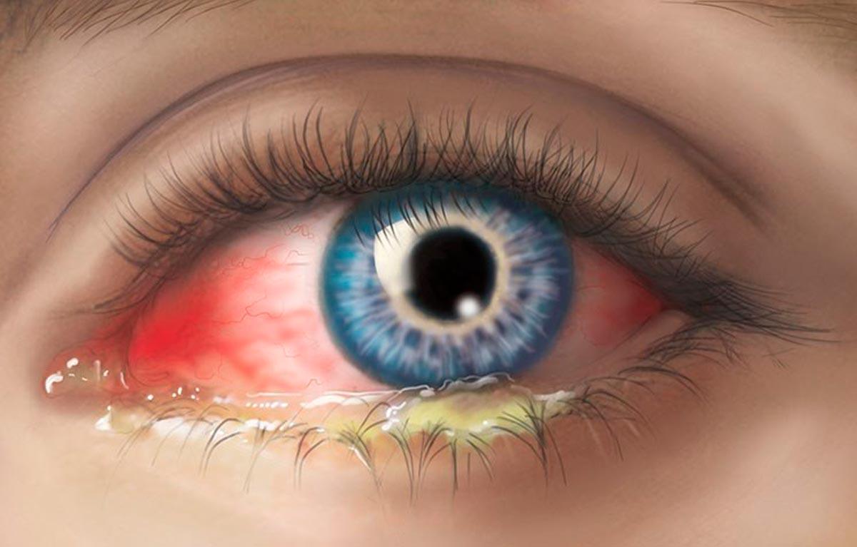 Вирусный конъюнктивит глаз — лечение у взрослых с помощью капель, мазей и других препаратов