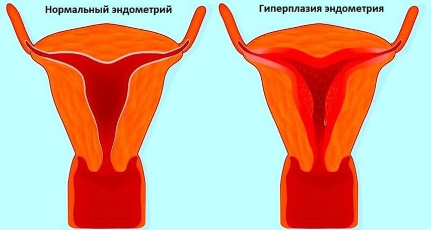 Что такое гиперплазия