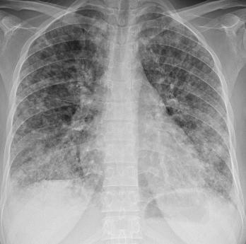 Компьютерная томография и туберкулёз лёгких
