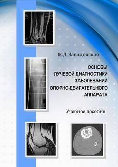 Туберкулезный спондилит позвоночника