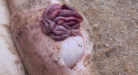 Хеликобактер - причина гастрита и язвы