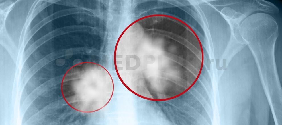 Рак легких: причины и развитие, типы и стадии, симптомы, диагностика, лечение, прогноз