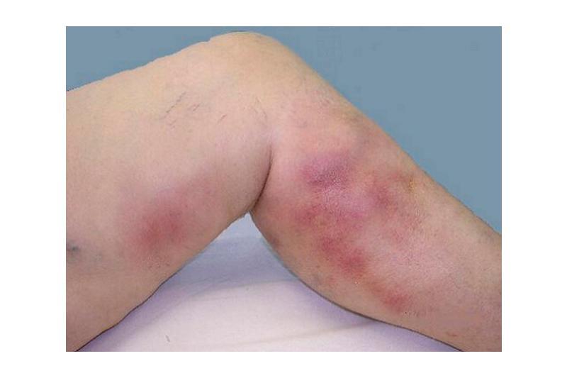 Флебит: методы диагностики, лечение и профилактика заболевания