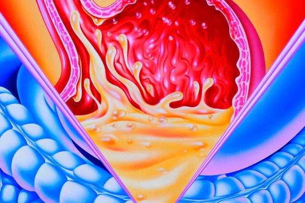 Как питаться после удаления желудка по поводу рака