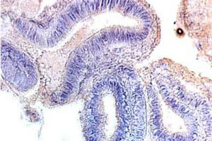 Простая гиперплазия эндометрия: особенности, причины и симптомы заболевания