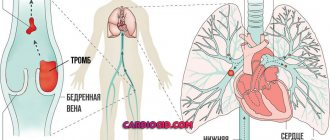 Прединфаркт симптомы первые признаки у женщин