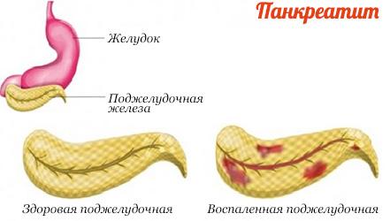 Рецепты при панкреонекрозе поджелудочной железы примерное меню