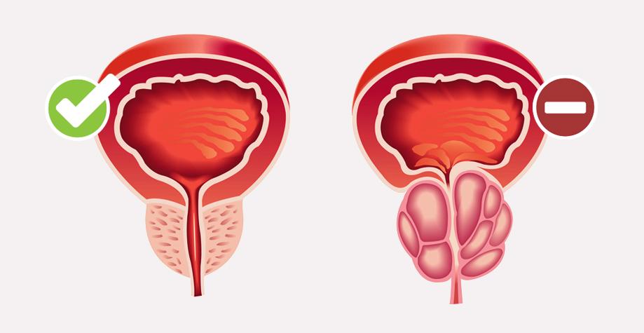Определение простой гиперплазии эндометрия без атипии: лечение, отзывы женщин