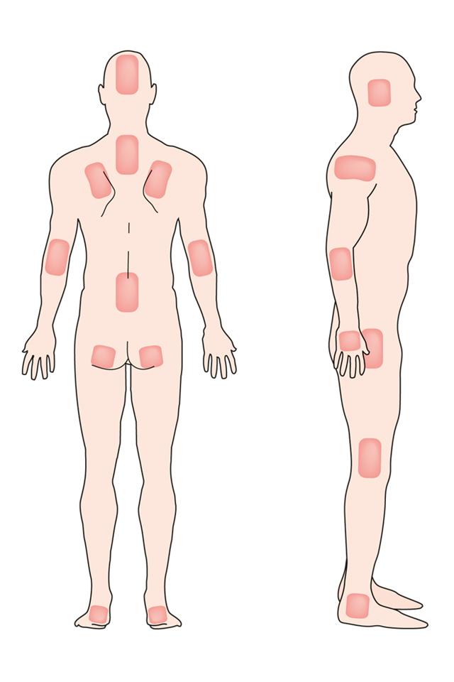 Лечение пролежней у лежачих больных | полезные знания для всех