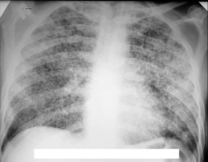 Покажет ли флюорография на снимке пневмонию?