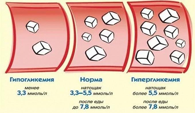 6 признаков гипогликемии