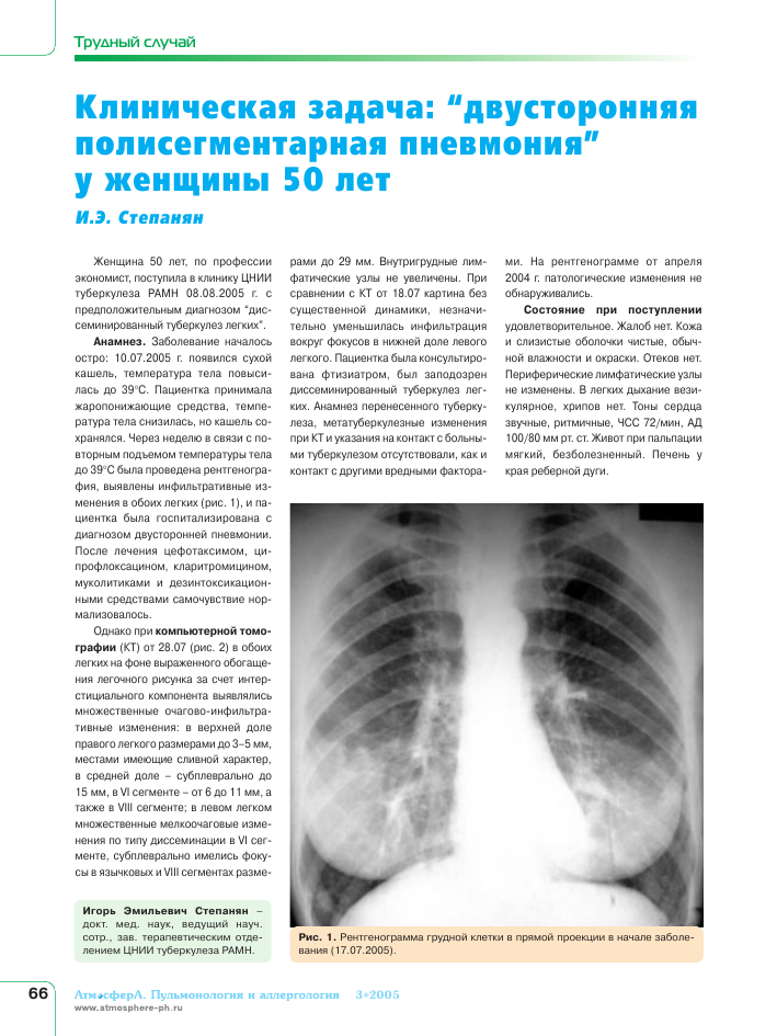 Как отличить туберкулез от пневмонии: по симптомам, анамнезу, физикальной диагностике