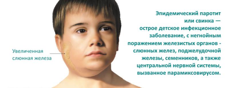 Эпидемический паротит (свинка) - симптомы болезни, профилактика и лечение эпидемического паротита (свинки), причины заболевания и его диагностика на eurolab