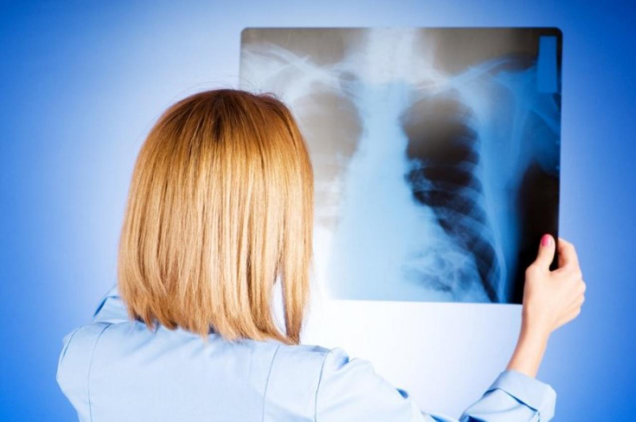 Воспаление легких у взрослых: характерные симптомы и эффективное лечение