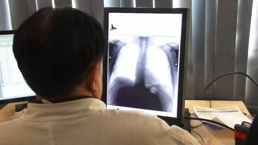 Рентген при туберкулезе. симптомы, признаки, описание рентгена при пневмонии