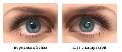 Глазные капли катаракс