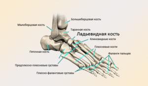 Остеохондропатия головок плюсневых костей