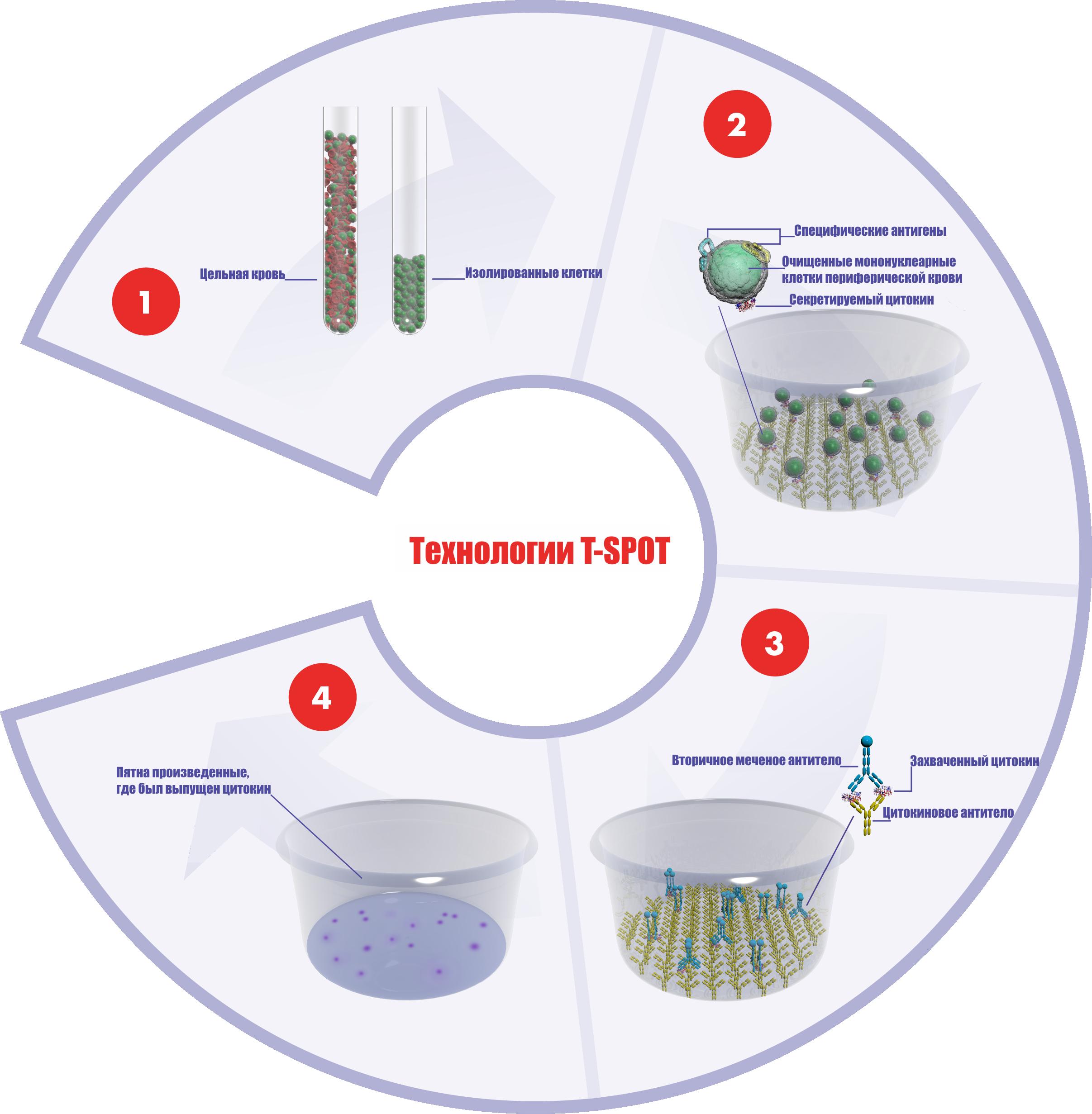 T-спот тест на туберкулез: особенности исследования, его плюсы и минусы
