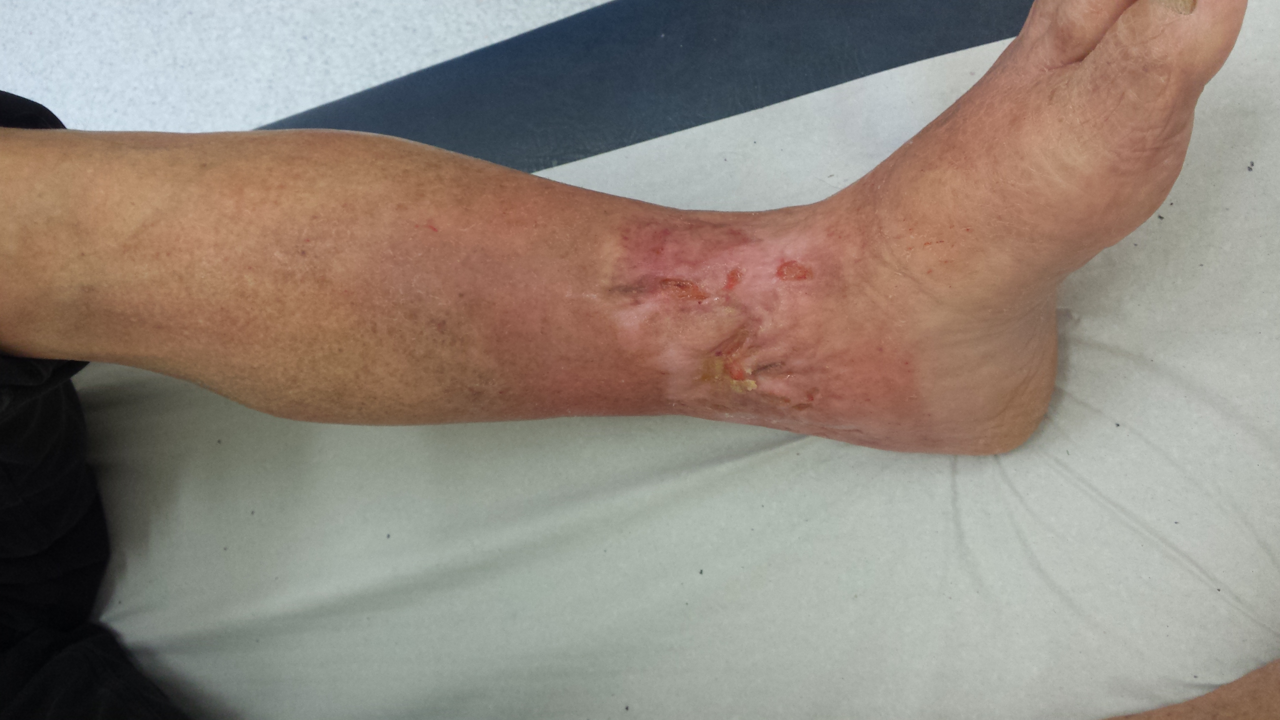 Трофические язвы на ногах лечение медпрепаратами