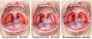 Причины и лечение воспаления гланд