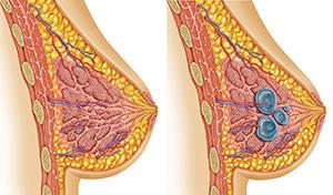 Мастопатия: когда нужна биопсия молочной железы. что такое фиброзно-кистозная мастопатия
