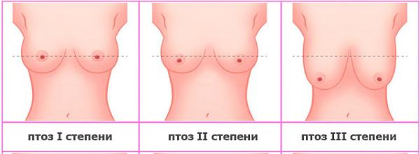 Что делать с обвисшей грудью после родов: как подтянуть