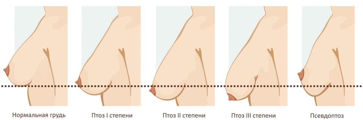 Обвисла грудь - причины и виды операции по подтяжке