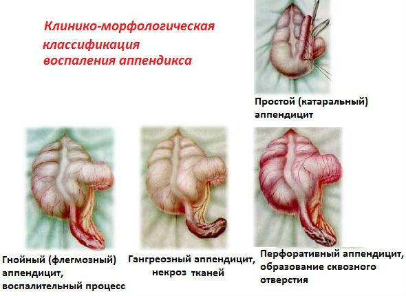 Признаки и диагностика хронического аппендицита
