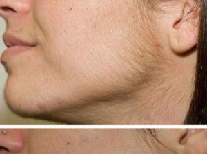 Риванол для удаления волос. инструкция по применению, цена, аналоги, отзывы