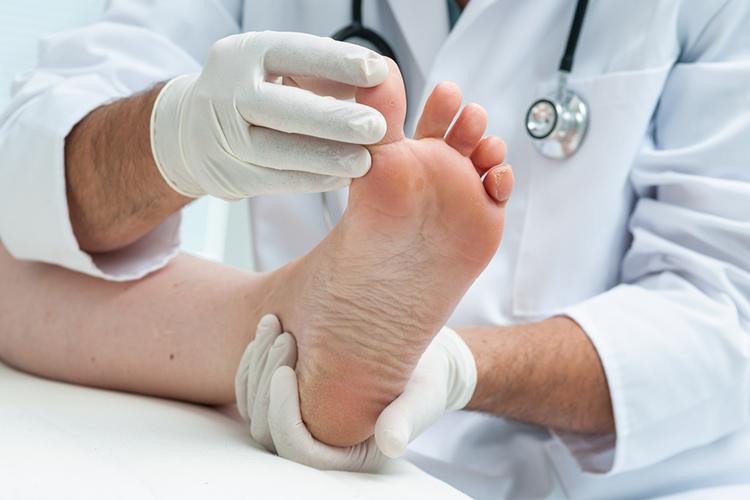 Разновидности грибковых заболеваний кожи у человека