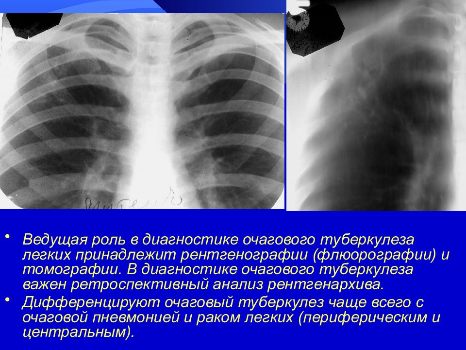 Что такое очаговый туберкулез легких и как его лечить?