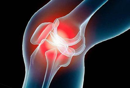 Симптомы и лечение артроза тазобедренного сустава, суть заболевания