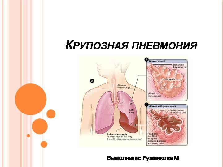 Симптомы, стадии и лечение крупозной пневмонии у взрослых