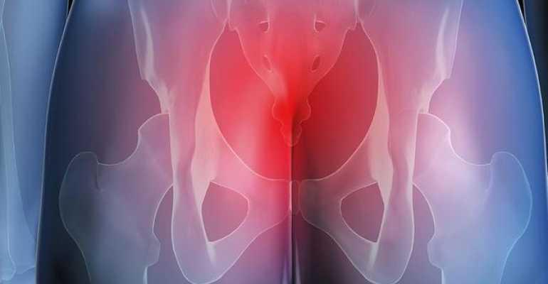 Болит копчик у мужчин и женщин: причины, диагностика и лечение