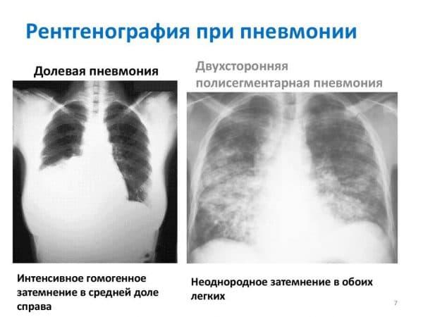 Как и почему развивается очаговая пневмония, формы поражения легких заболеванием, эффективное лечение